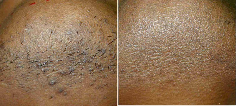 Before & After Male Chin Hair Removal