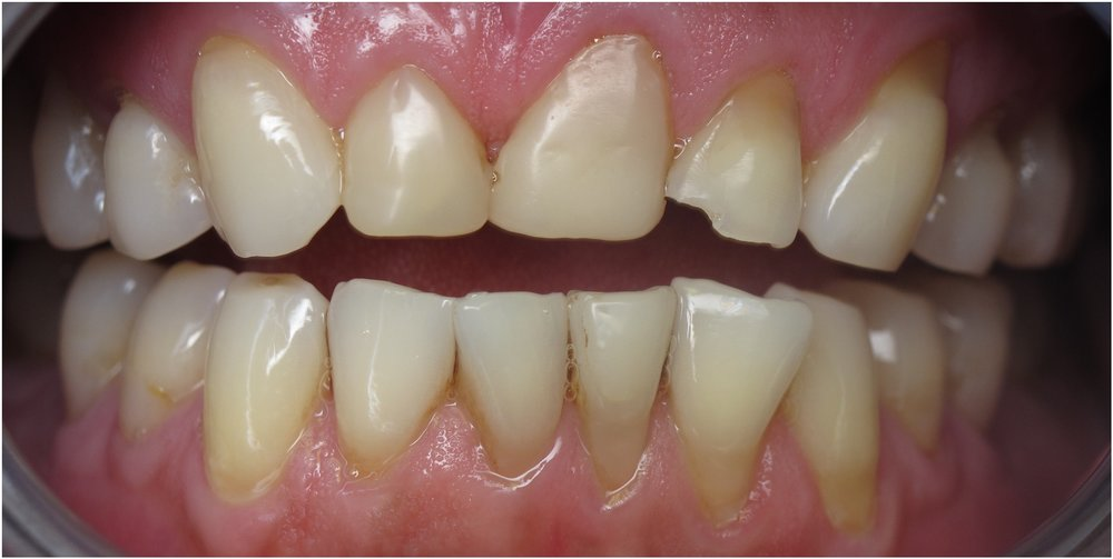 Aesthetic Crown Lengthening and Gum Reshaping picture. Before picture.
