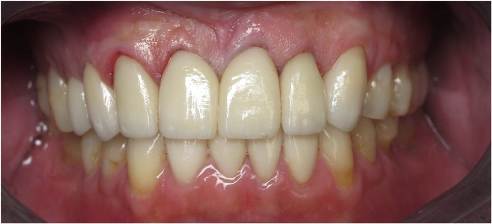 Aesthetic Crown Lengthening and Gum Reshaping picture. After picture.