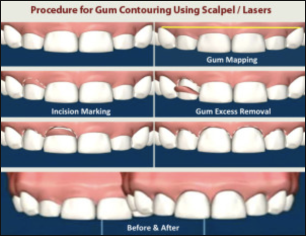 Graph of Crown Lengthening