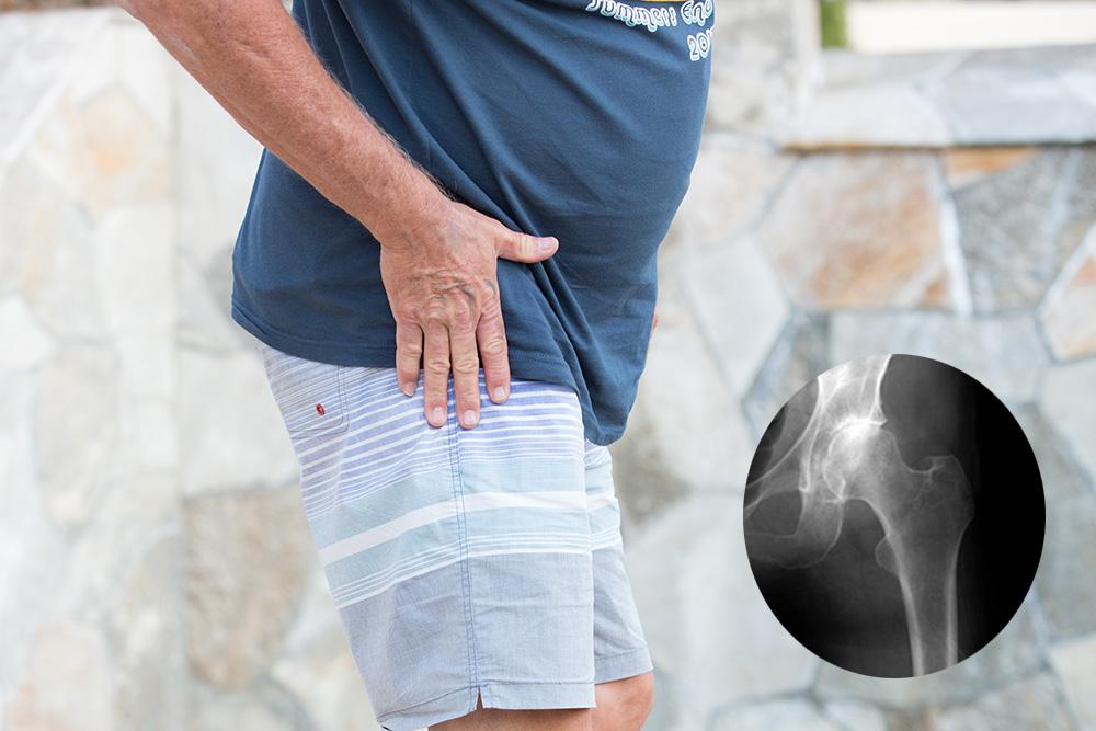 Karl Balch Hip Arthritis Xray Cutout Jpg