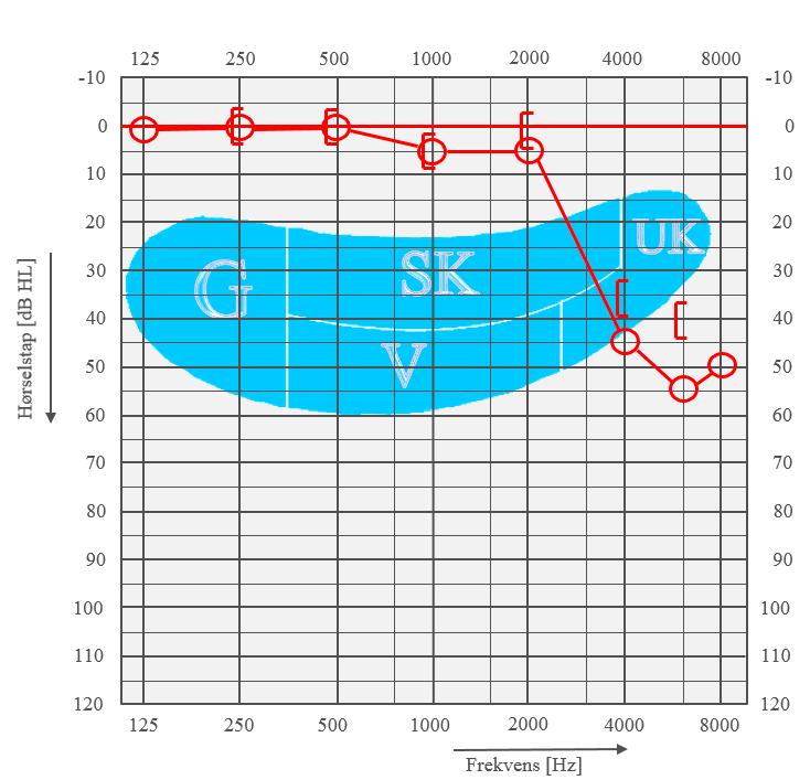 Audiogramet viser betydelig hørselsreduksjon i diskanten. Målet er å redusere støyeksponeringen slik at slike skader ikke oppstår.  Les mer om hørsel og støyskade ved å trykke på linken nedenfor:
