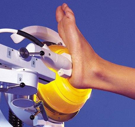 shockwave treatment for foot and heel pain
