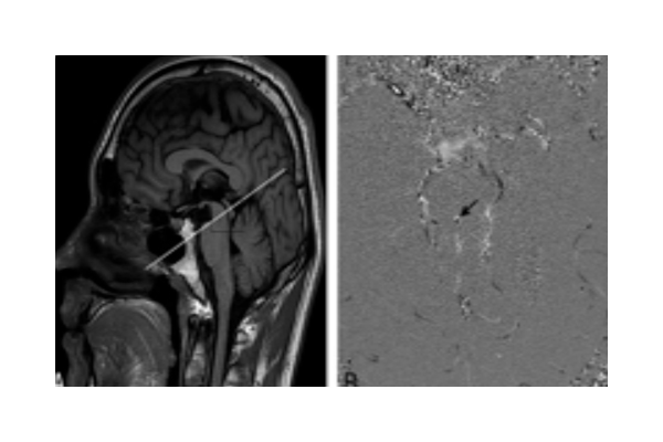 TimeStamp is a new MRI-based image acquisition software that allows MRI images to maintain high image contrast for easier and faster interpretation by the radiologist.