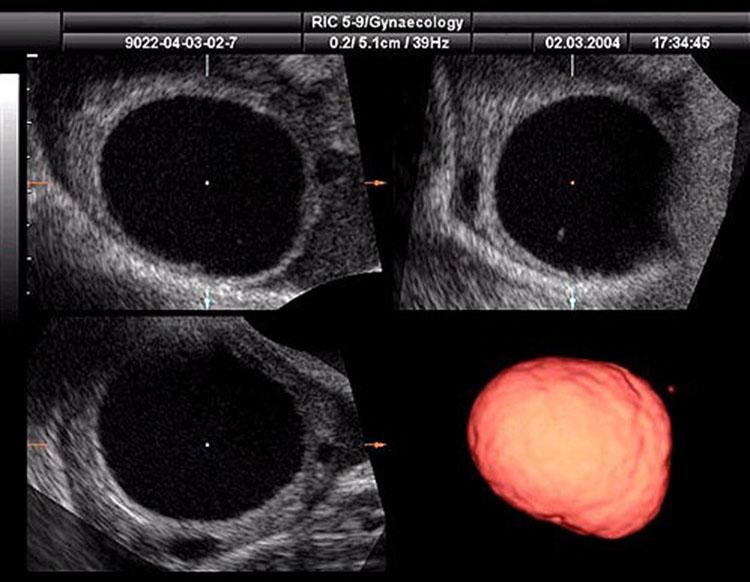 DMI-ecografo 4D.jpg