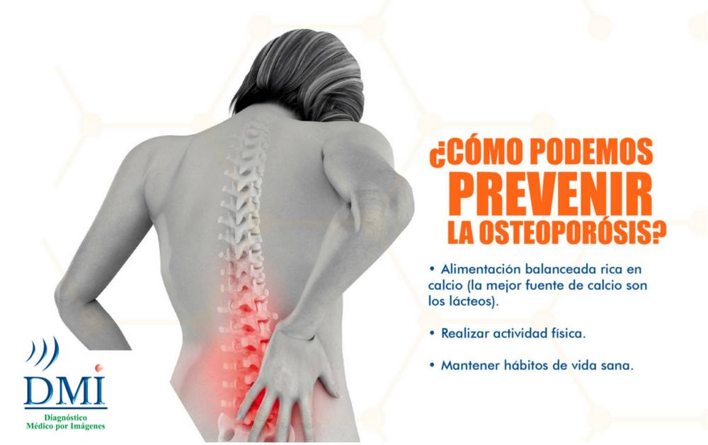 Estudio de Densitometría Ósea -