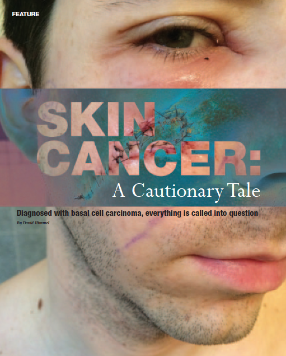 Skin Cancer: A Cautionary Tale     Chicago Health   — Journalism