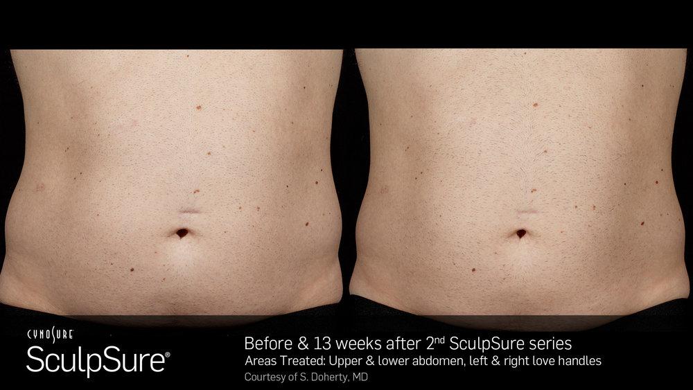 SculpSureBefore&After_SidebySide_Male5.jpg
