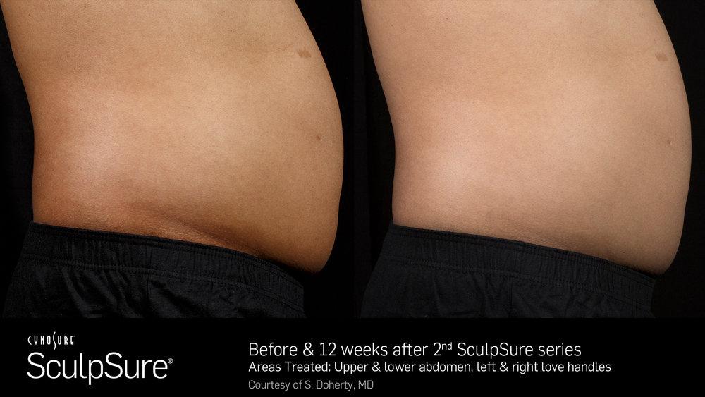 SculpSureBefore&After_SidebySide_Male10.jpg