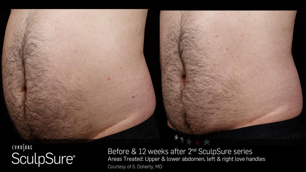 SculpSureBefore&After_SidebySide_Male7.jpg