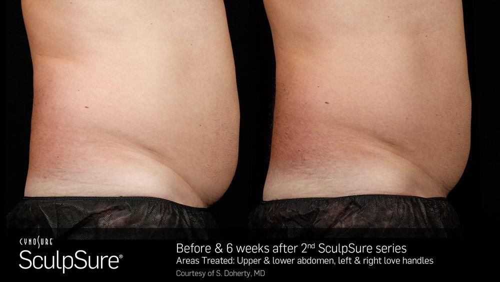 SculpSureBefore&After_SidebySide_Male2-2.jpg
