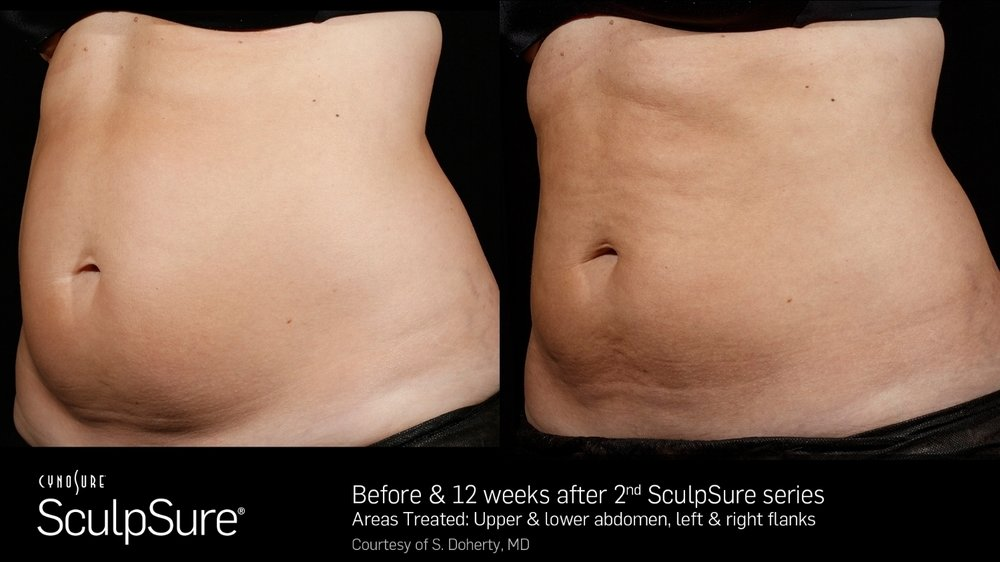 SculpSureBefore&After_SidebySide_Female1.jpg