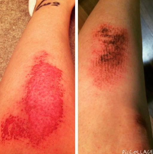 Almost exactly a year apart. Same spot. #ouch #soccer #turfburn #scars