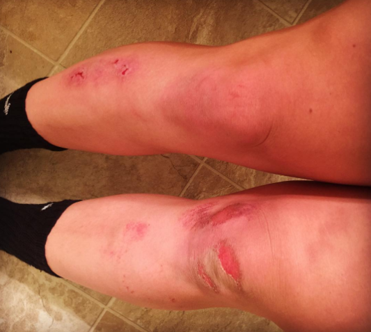 Must be soccer season again #toreup #turfburn #ksusoccer #gk#soccergirlprobs #keeper