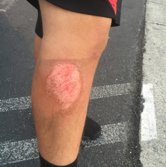 Casualty of football. Raudel got really bad turf burn today during practice#football #deanzahighschool#turfburn