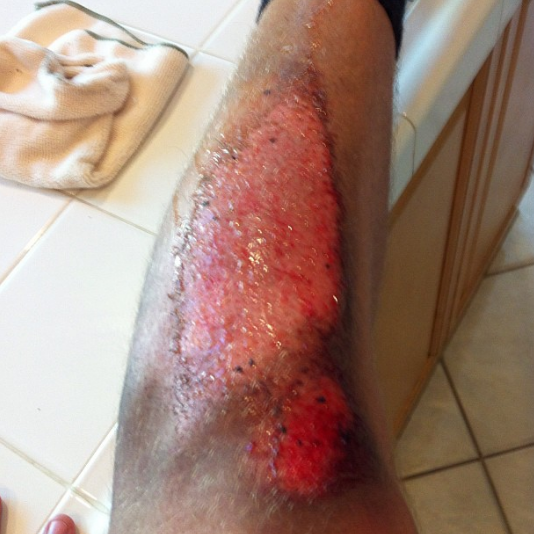 #tbt to when i destroyed my leg sliding for a kickass ultimate frisbee catch #ultimate #turfburn