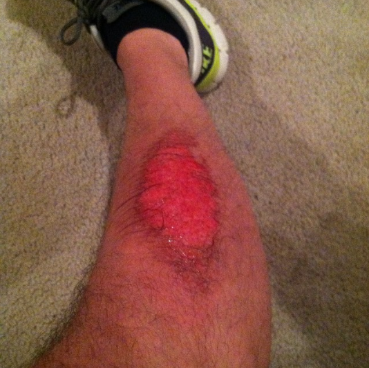 The one thing I don't miss about football. #turfburns #rubbingalcohol#futurebaldspot