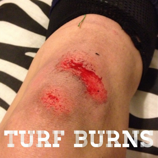 Hate them! A new one from tonights practice! #soccergirlprobs #turf#burns #turfburns #soccer #soccerswag#bloody #cuts #hurts
