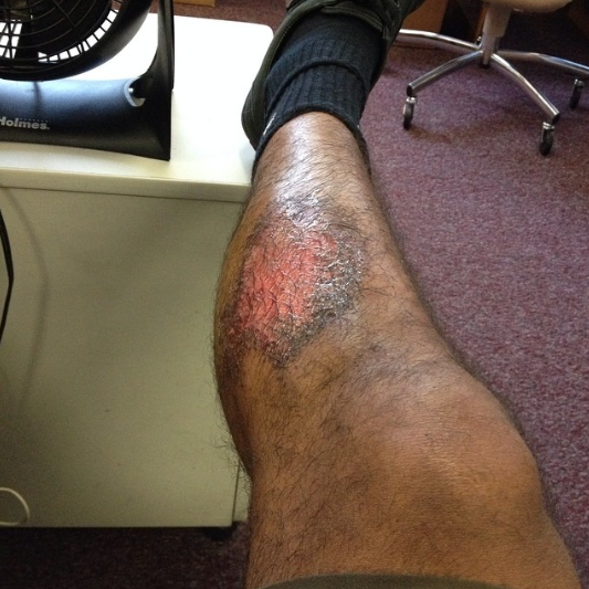 What I do for my team 😝 #TKFC #turfburn #leaveitallonthepitch#futbol #soccer
