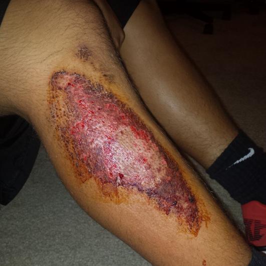 Josès turf burn. Damn #turfburn