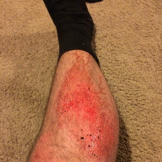 So I guess that's why you don't wear shorts on turf. #flagfootball#turfburn #imtoooldforthis