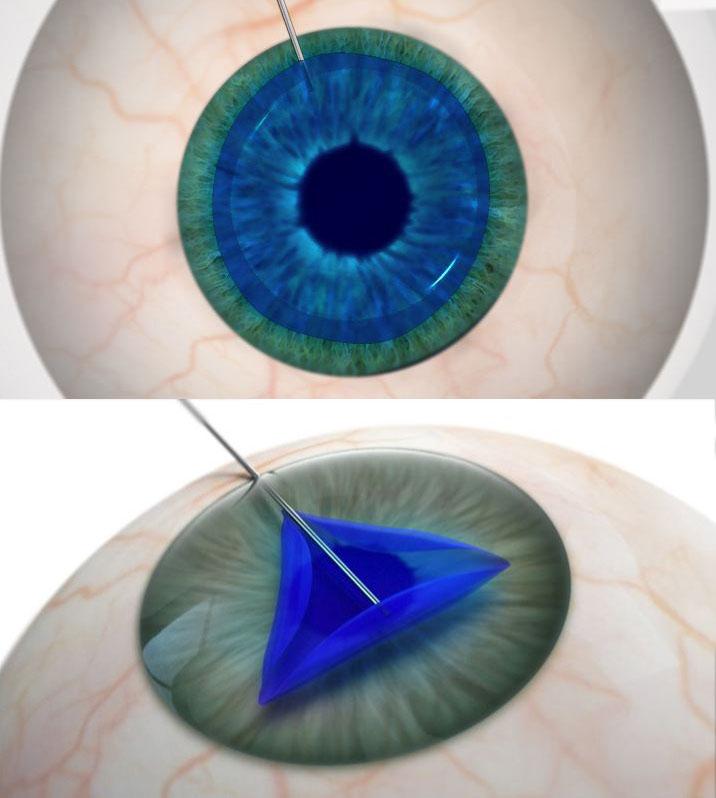 Delta Eye Medical