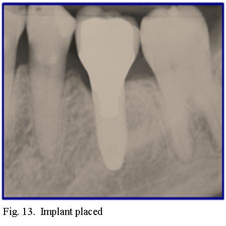 Dr. Palencar 13.jpg