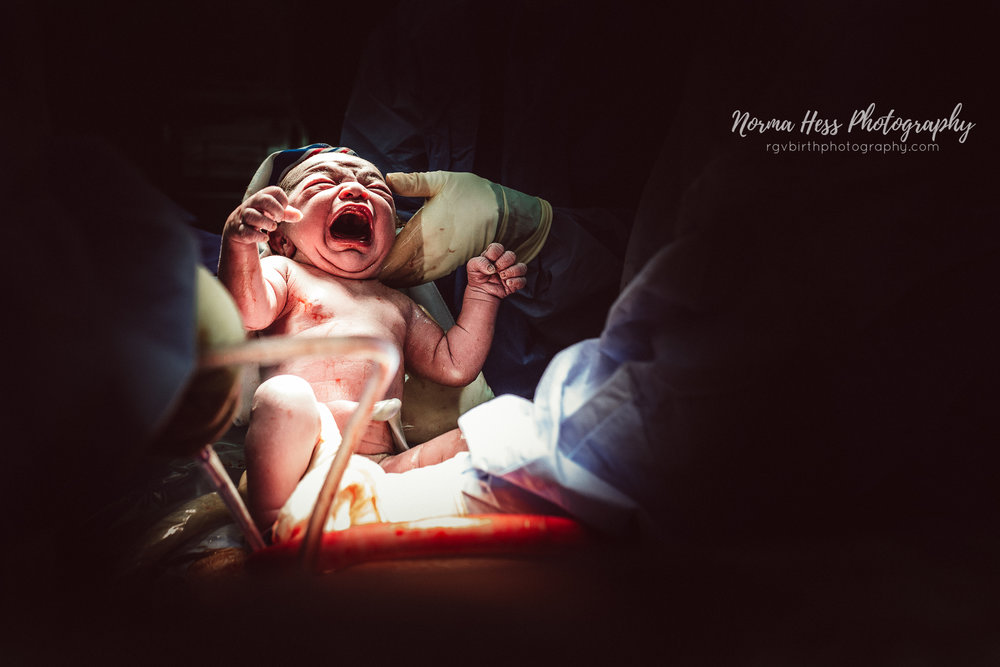 Csection Photography in McAllen, TX by Norma Hess Photography | rgvbirthphotography.com