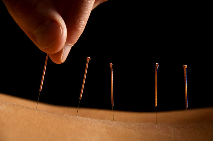SLIDER-LIGHTBOX Acupuncture-Insurance-Image.jpg