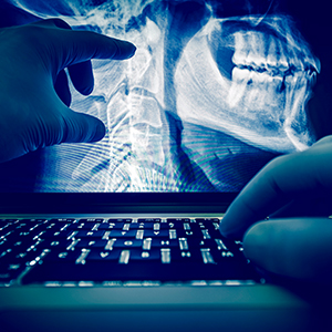 Dental X Ray Laptop 300 300.jpg