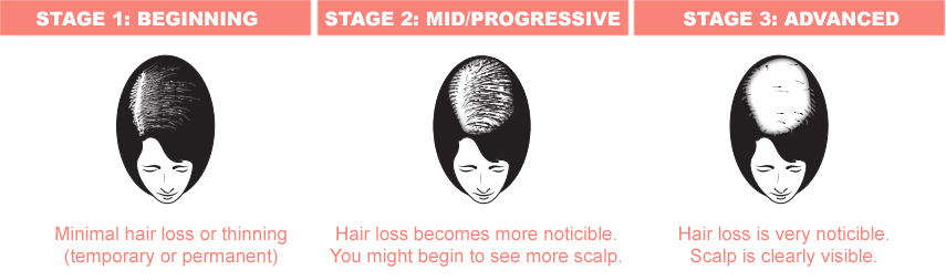 stages.jpg