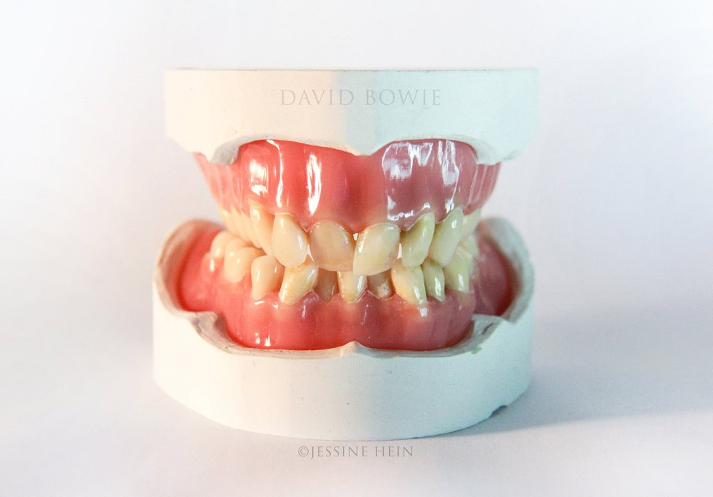 David Bowie Denture, front.jpg