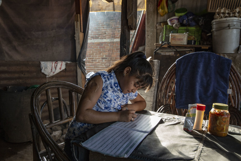 Alexandra Velasquez, she had several surgical operations after an car accident in 2012. Here doing homework in her house in San Pedro Sula, Honduras. He recevied extensive help from the Ruth Paz fundation.