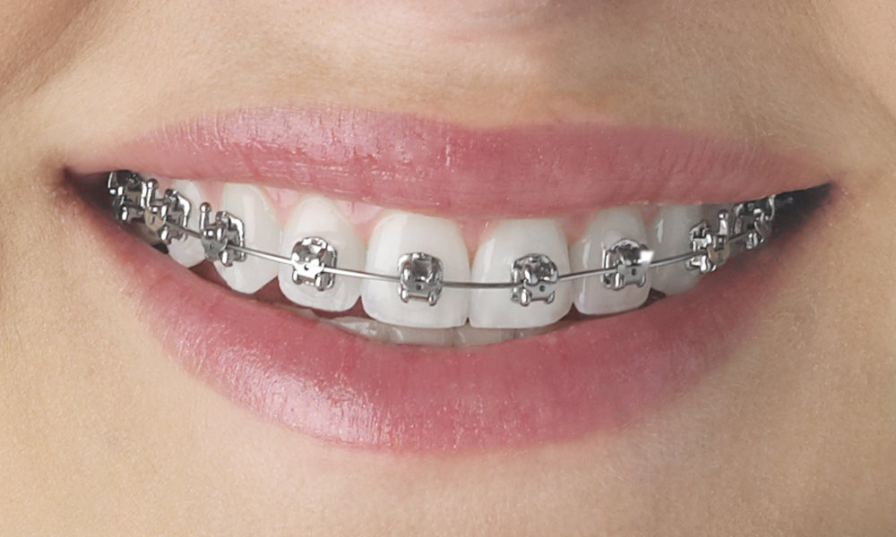 Metal-Braces.jpg