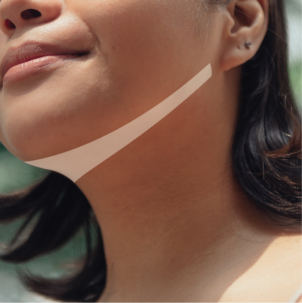 Under the Chin Lift - The neck always reveals the truth - your age. If you're serious about losing that bunch of skin underneath the chin and the turkey neck, then Ultherapy Under the Chin Lift will be your best bet.Introductory price: Php 30, 000