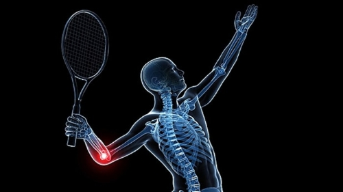 Tennis elbow occurs in sportsmen and non-sports people alike. It was called Tennis elbow due to its common occurance in tennis players.
