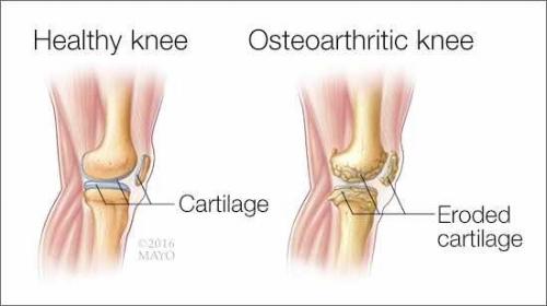 osteoarthritis knee.jpg