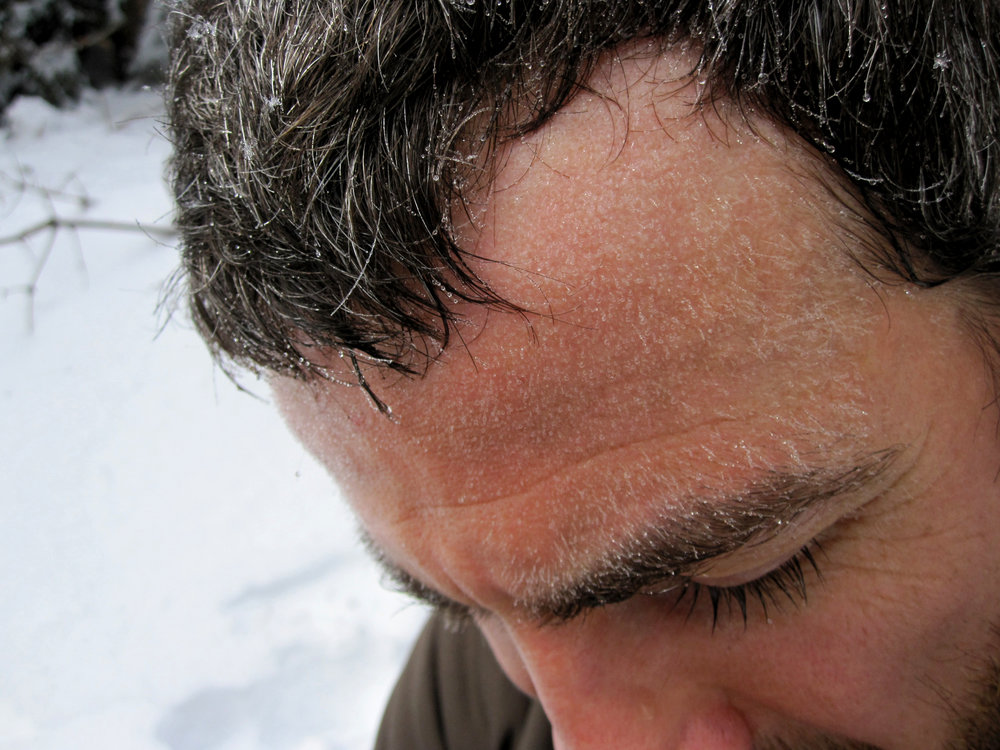 "Dale's sweat on his ""forehead fuzz"" is freezing!"