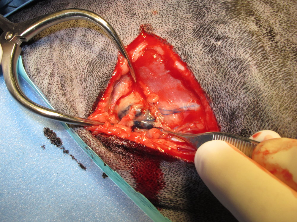 A blue dye is injected peritumorally to aide in the identification of the prescapular lymph node during surgery. This lymph node is excised to determine if there is evidence of metastasis.
