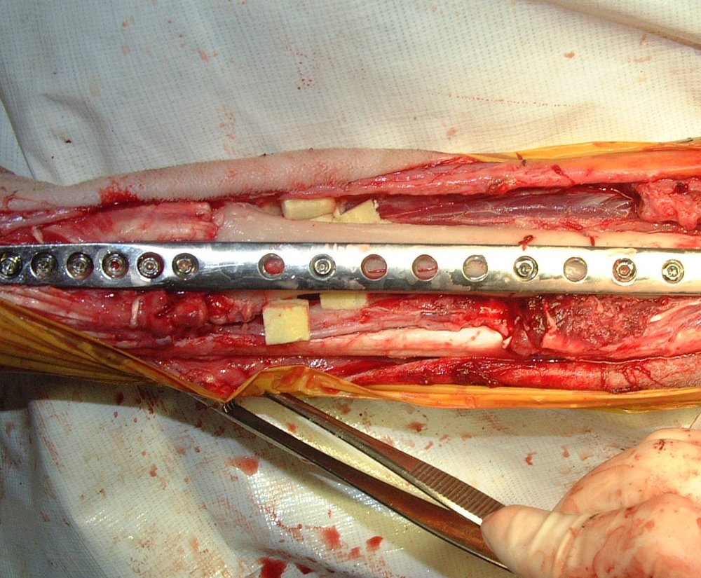 Cortical Allograft Limb-Sparing Surgery