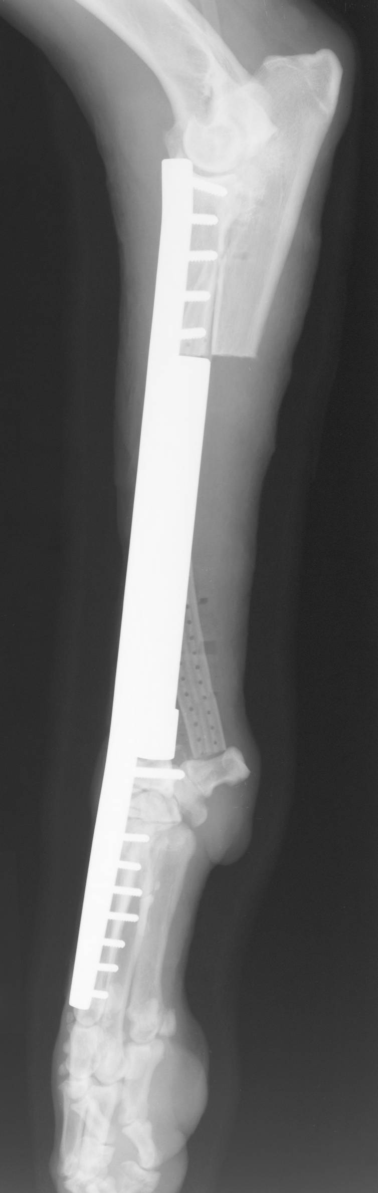 Endoprosthesis Limb-Sparing Surgery