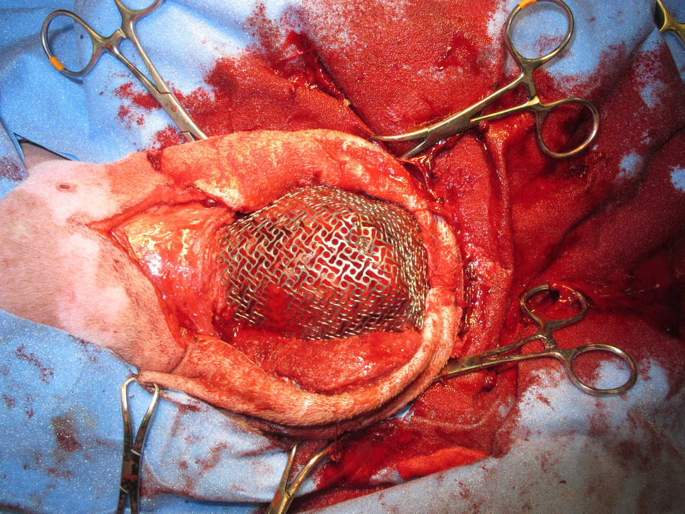 Titanium Mesh Post-OSA Resection