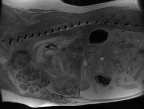 MRI - Sternal Hemangiosarcoma