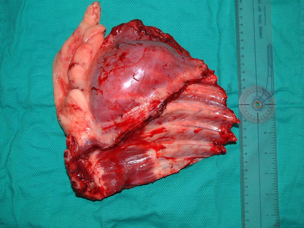 Rib osteosarcoma