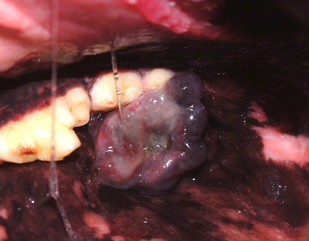Maxillary Melanoma