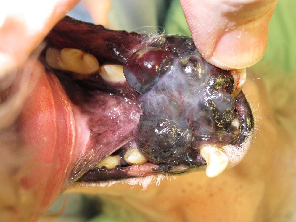 Mandibular Melanoma