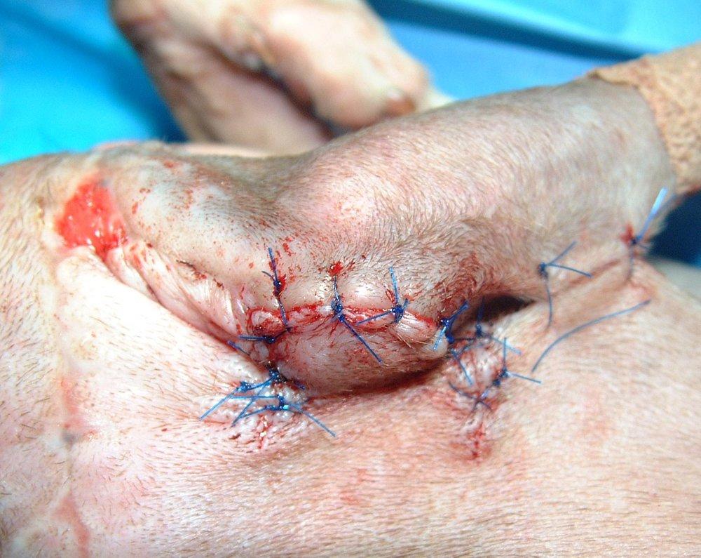 Surgery #1 - Hinge Flap