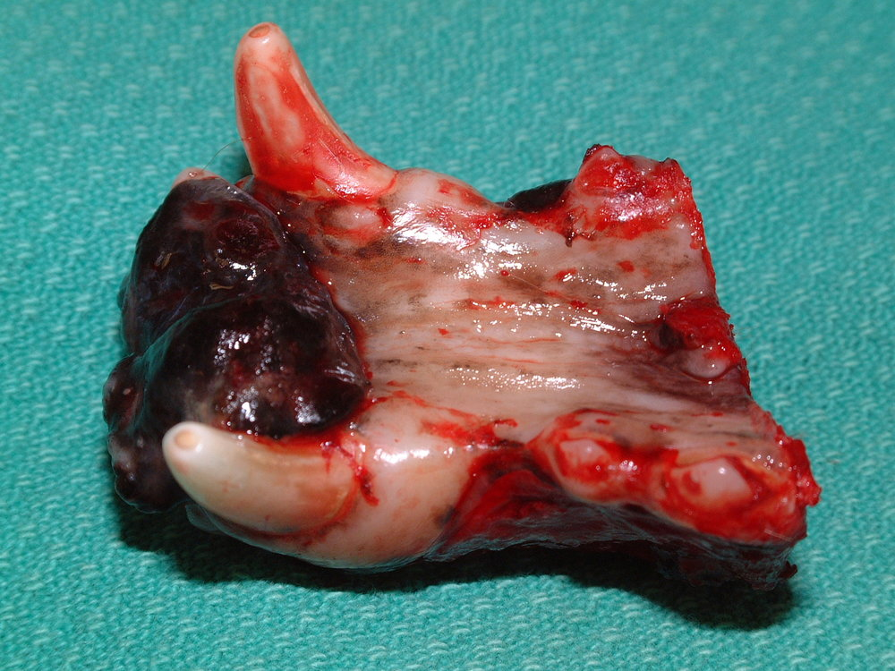 BILATERAL ROSTRAL MANDIBULECTOMY