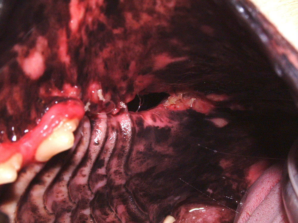 Oronasal Fistula