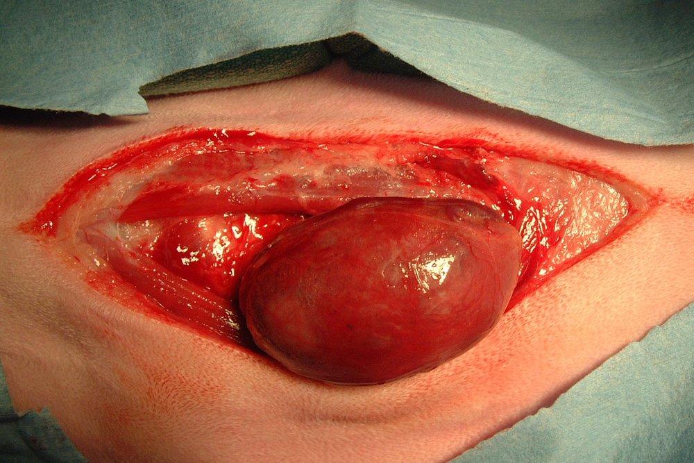 Simple Carcinoma